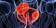 هل سرطان المثانة مميت ؟