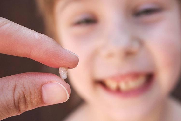 أعراض ظهور الضروس عند الأطفال