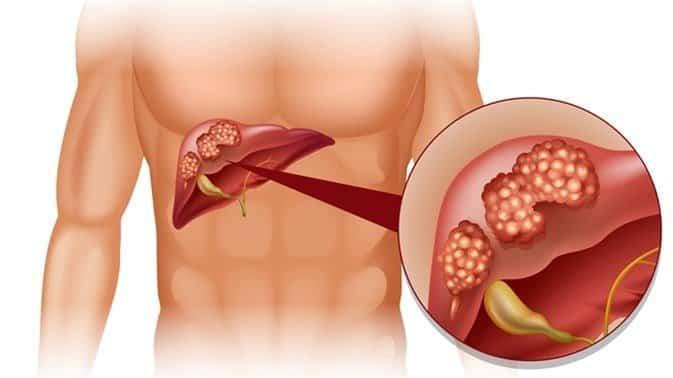 كم يعيش مريض سرطان الكبد بدون علاج
