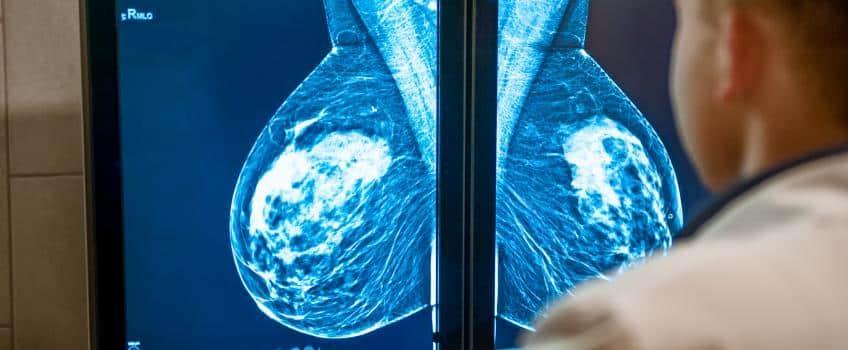 كم تعيش مريضة سرطان الثدي