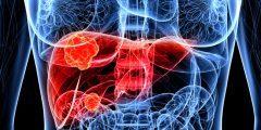هل يشفى مريض سرطان الكبد