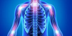 هل مرض الروماتويد خطير
