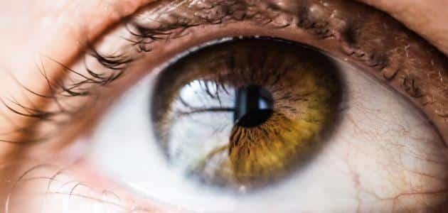 مشاكل قرنية العين