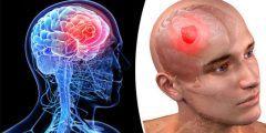 أعراض سرطان الرأس