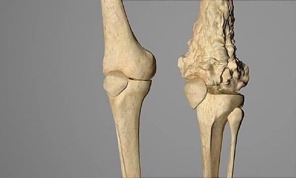 مدة حياة مريض سرطان العظام