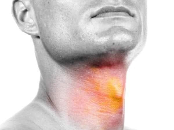 هل سرطان الحنجر يسبب الوفاة