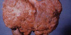 هل مريض تليف الكبد يعيش