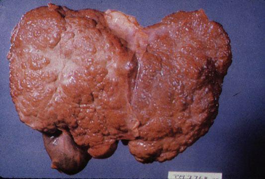 حياة مريض تليف الكبد