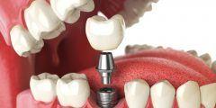 هل زراعة الأسنان تسبب السرطان؟