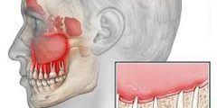 التهابات عصب الاسنان