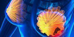 أعراض سرطان الثدي الأولية