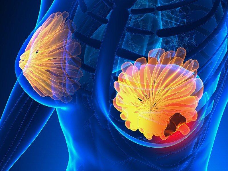 الاعراض المبكرة لسرطان الثدي