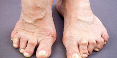 روماتويد القدم وأعراضه