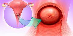 التهاب عنق الرحم هل يمنع الحمل؟