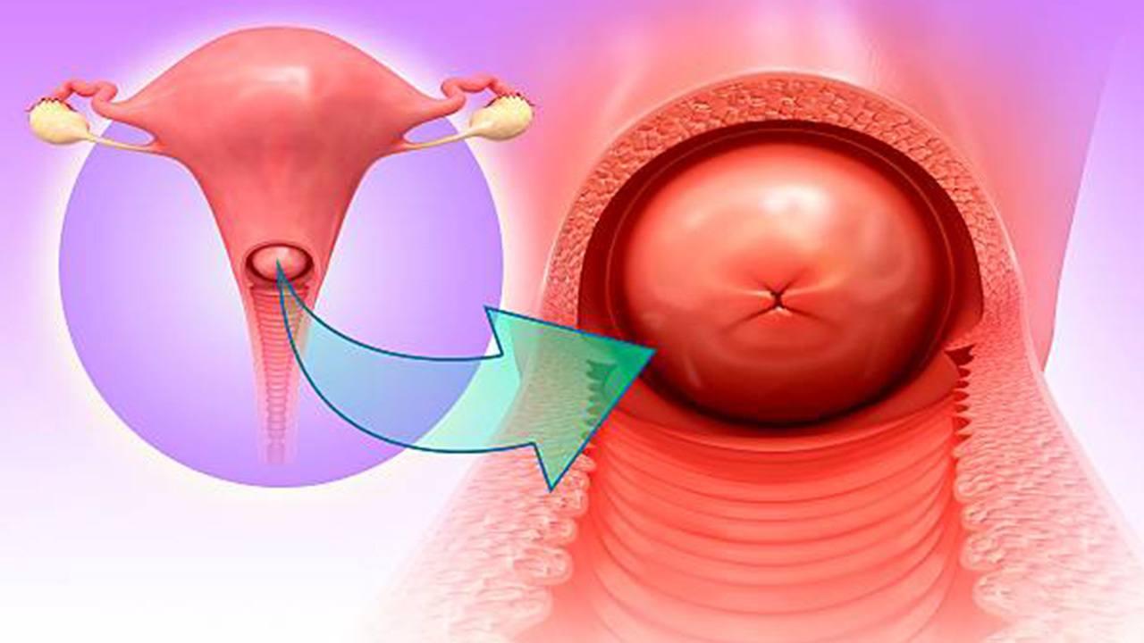 هل التهابات عنق الرحم تمنع الحمل