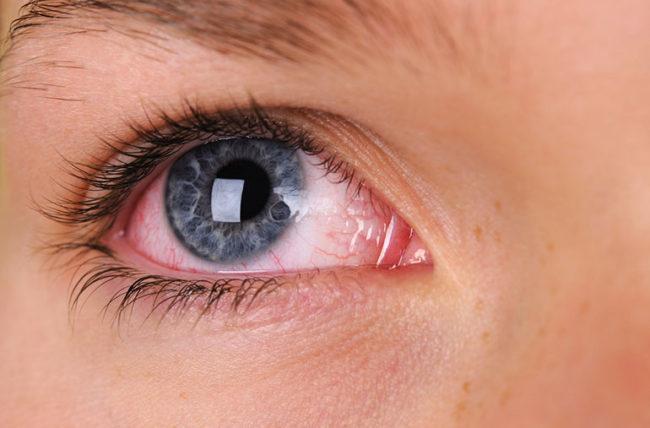 أسباب احمرار العينين