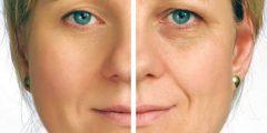 أسباب اصفرار الوجه المفاجئ