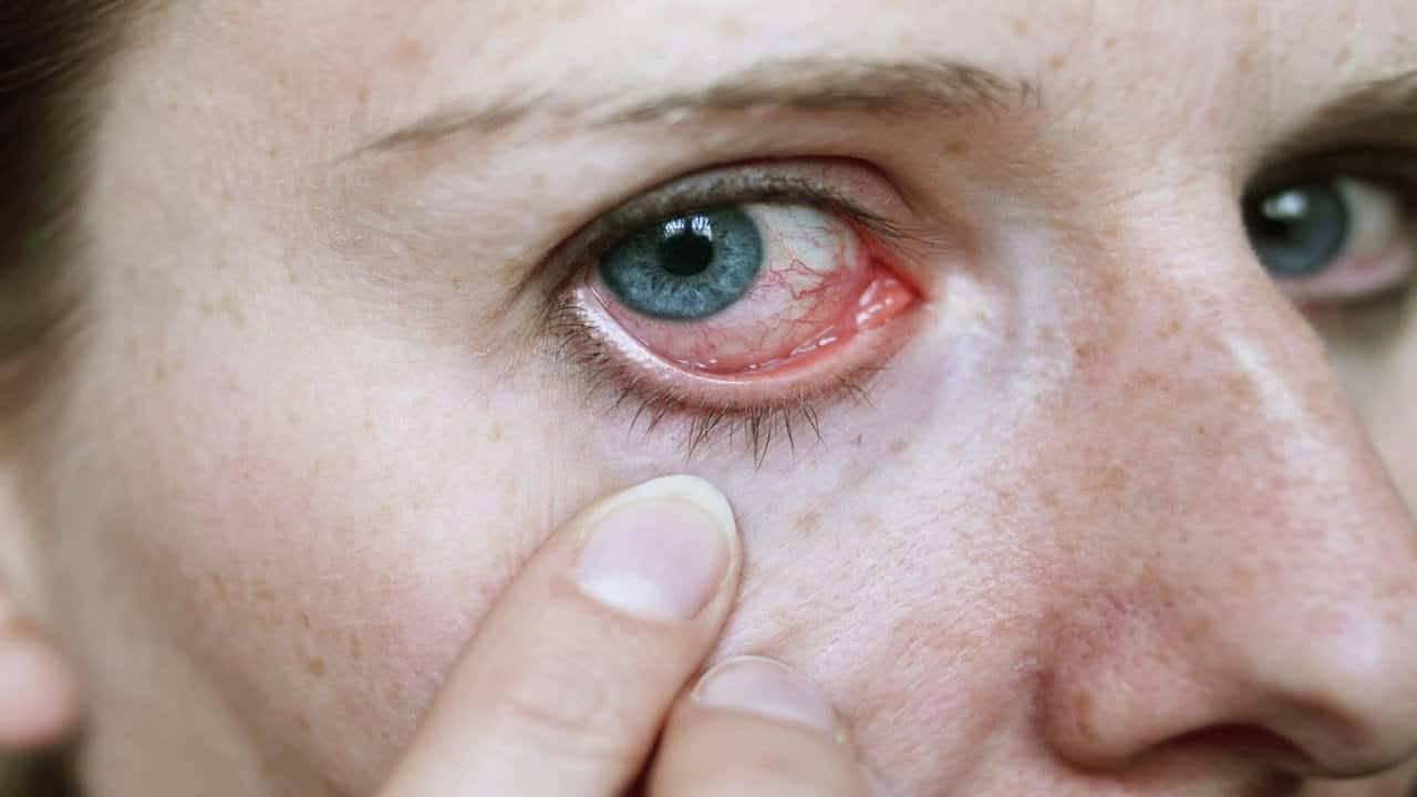 علاج حساسية العين واحمرارها