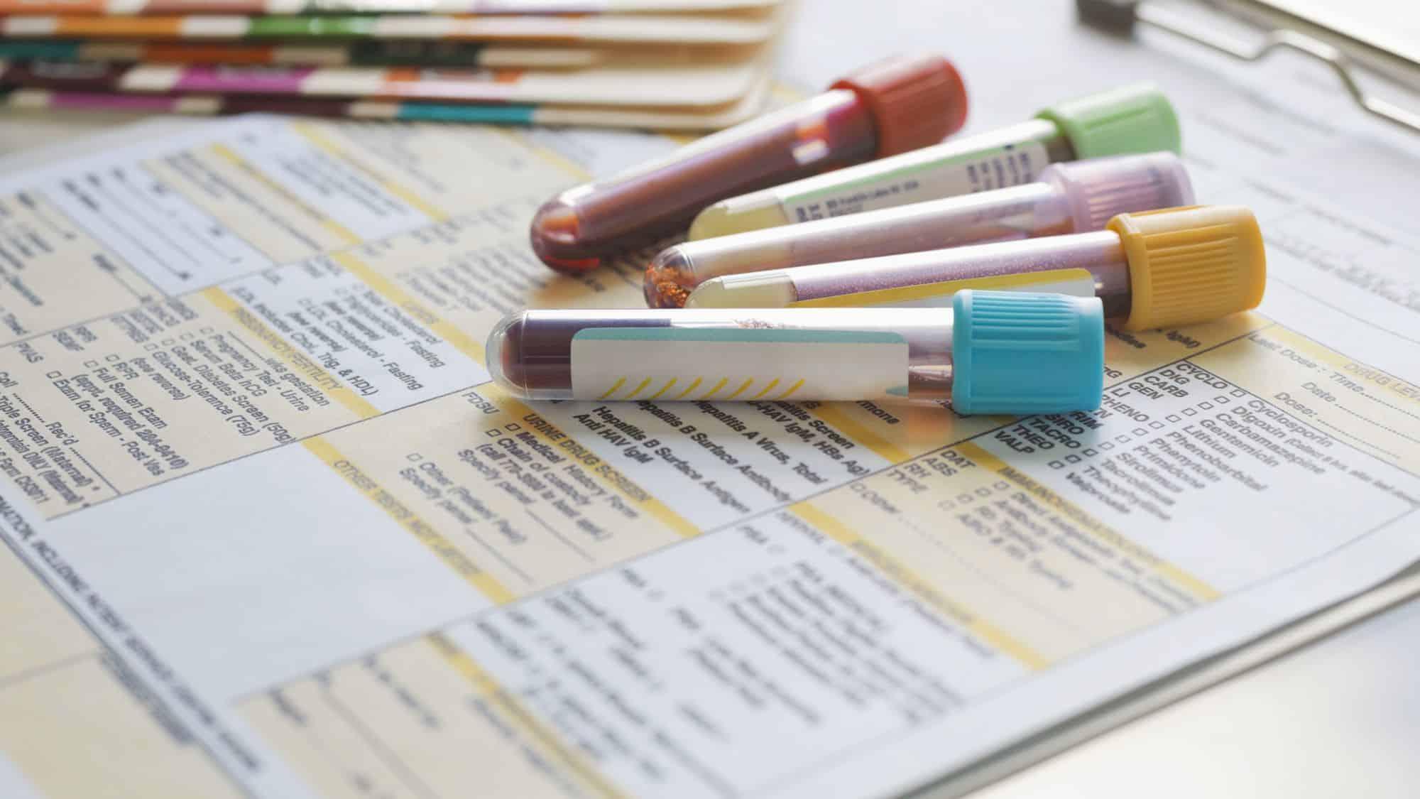 النتيجة السلبية في اختبار الحمل عن طريق تحليل الدم
